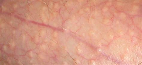acne spots on penis jpg 600x276
