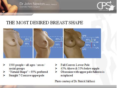 breast lift surgery areola beautiful png 524x393
