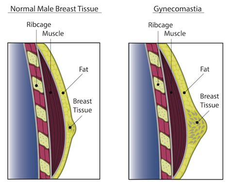 loss of breast tissue png 600x475
