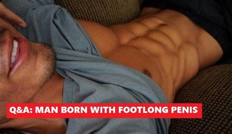 Man enjoys life after losing 3footlong penis new york post jpg 744x432